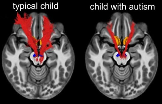 What Makes Kids With Autism Less Social >> Study Key Social Reward Circuit In The Brain Impaired In Autistic Kids